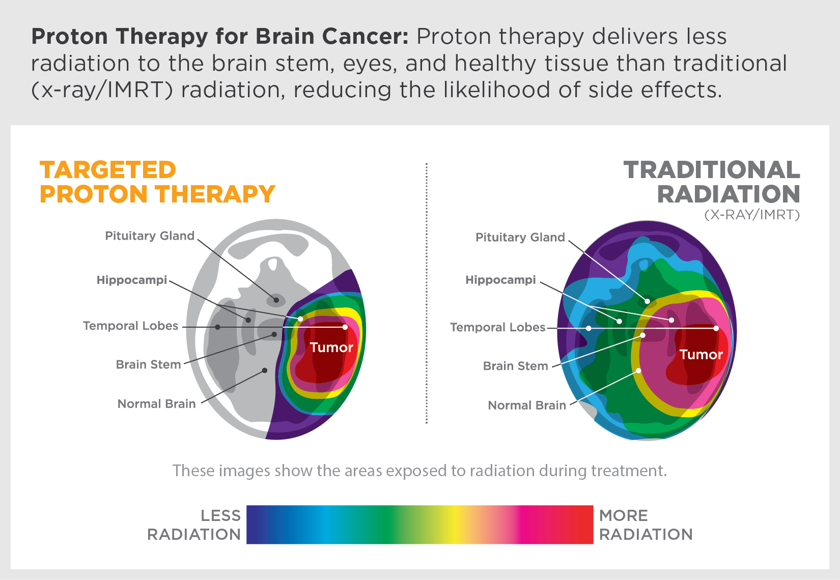 Proton therapy delivers less radiation to the brain stem, eyes and healthy tissue than traditional (x-ray/IMRT) radiation, reducing the likelihood of side effects.
