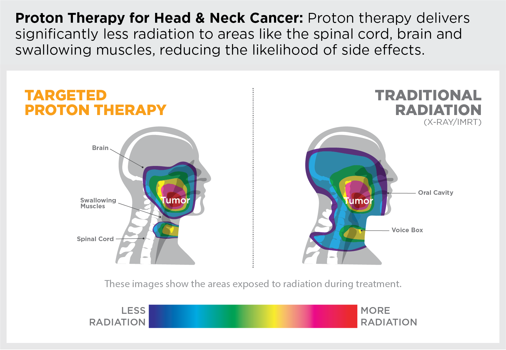 Proton therapy delivers significantly less radiation to areas like the spinal cord, brain and swallowing muscles, reducing the likelihood of side effects.