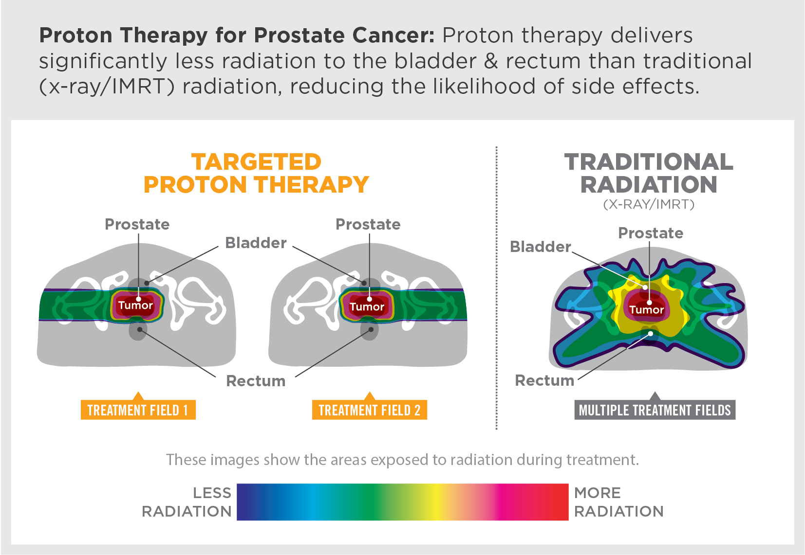 Proton therapy delivers significantly less radiation to the bladder and rectum than traditional (x-ray/IMRT) radiation, reducing the likelihood of side effects.