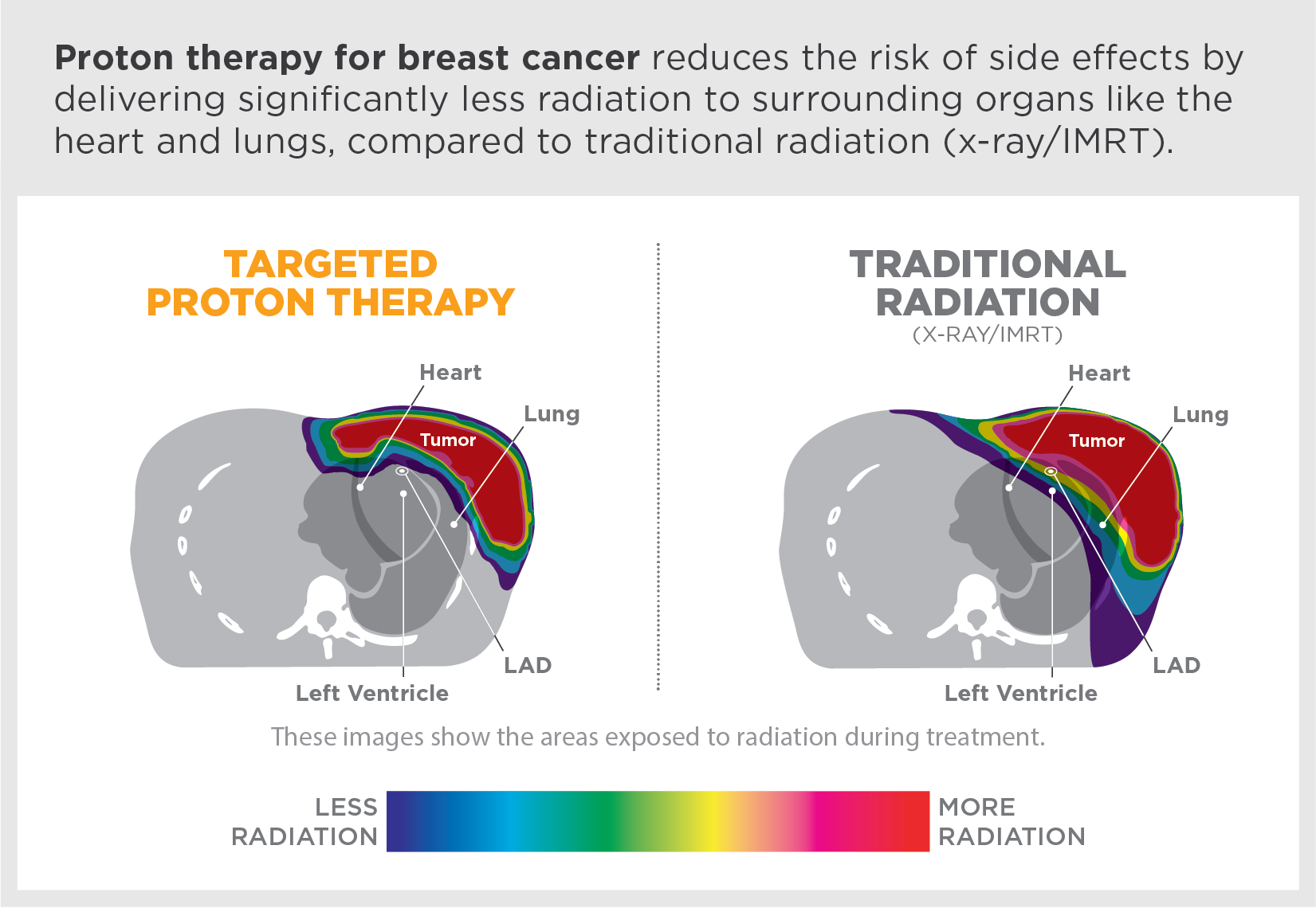 Proton therapy for breast cancer reduces the risk of side effects by delivering significantly less radiation to surrounding organs like the heart and lungs, compared to traditional radiation (x-ray/IMRT).