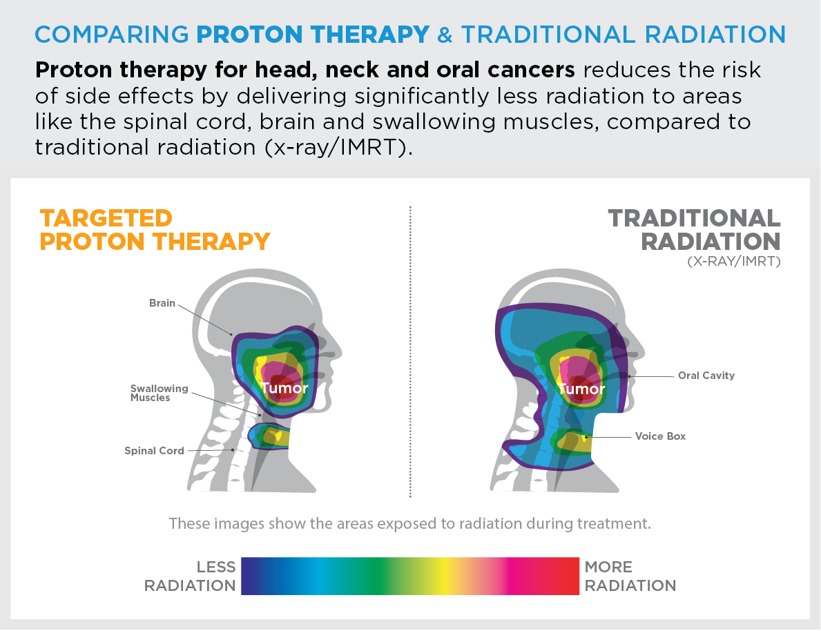 Proton therapy for head, neck and oral cancers reduces the risk of side effects by delivering significantly less radiation to areas like the spinal cord, brain and swallowing muscles, compared to traditional radiation (x-ray/IMRT).
