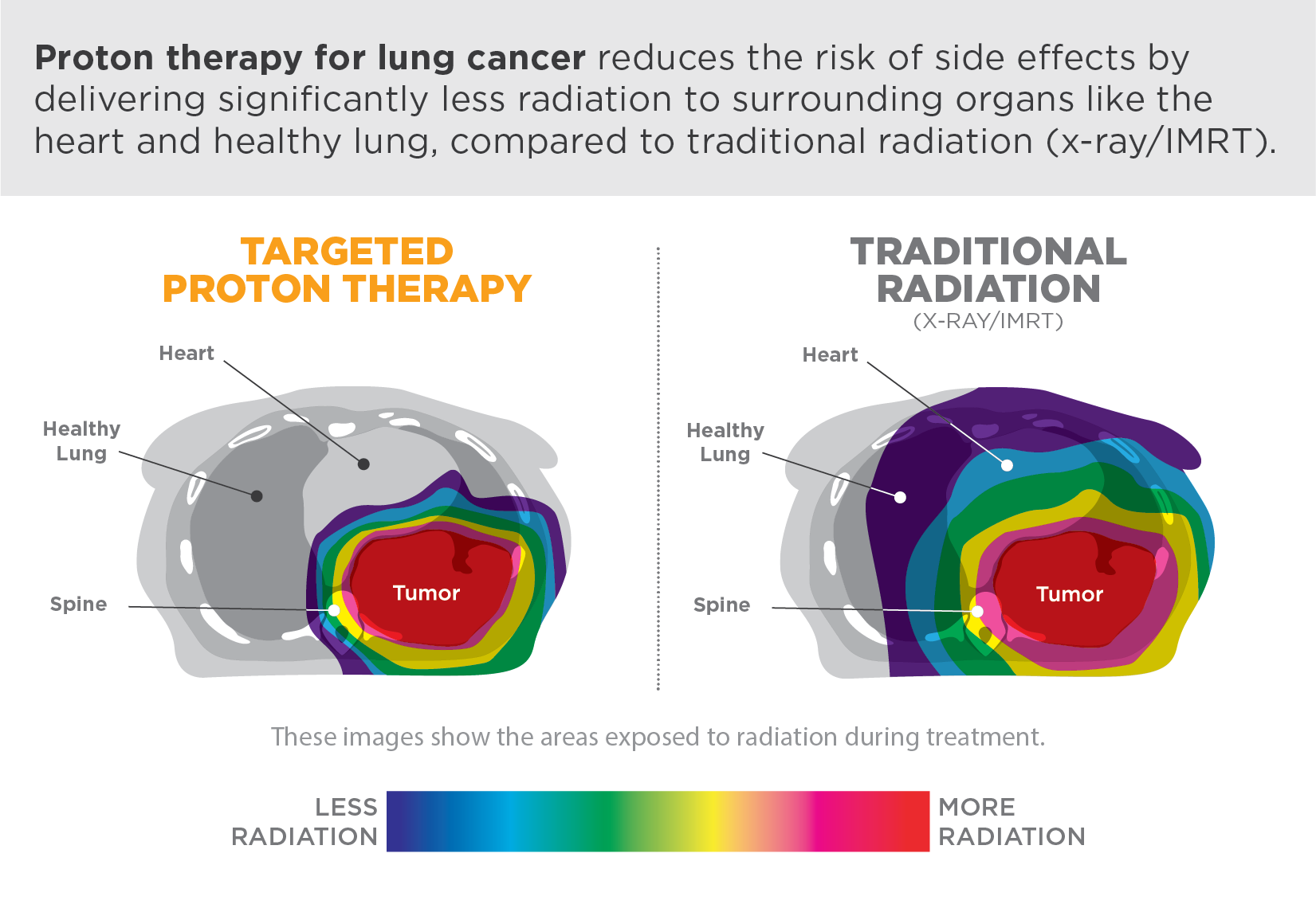 Proton therapy for lung cancer reduces the risk of side effects by delivering significantly less radiation to surrounding organs like the heart and healthy lung, compared to traditional radiation (x-ray/IMRT).