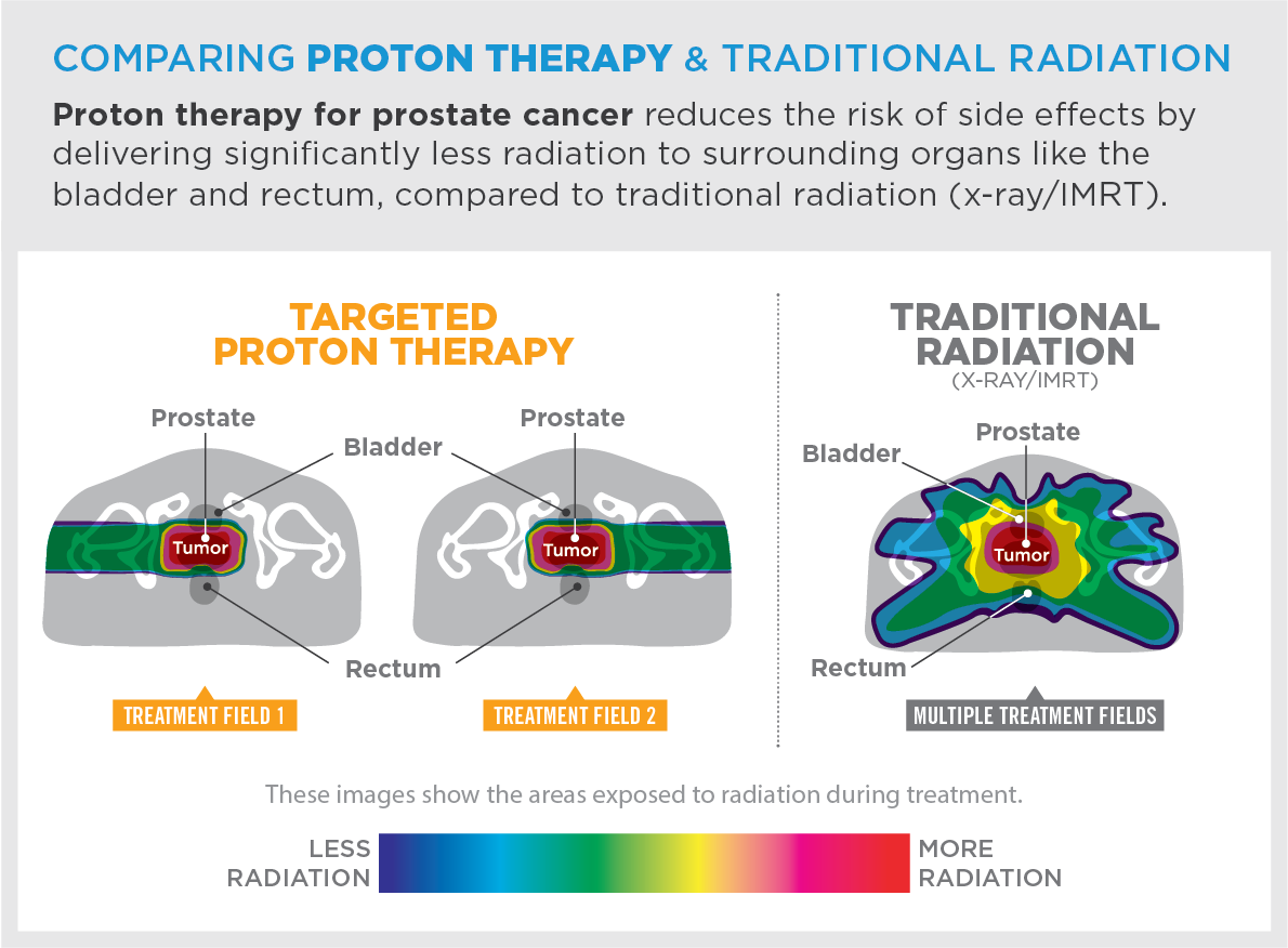 Proton therapy for prostate cancer reduces the risk of side effects by delivering significantly less radiation to surrounding organs like the bladder and rectum, compared to traditional radiation (x-ray/IMRT).
